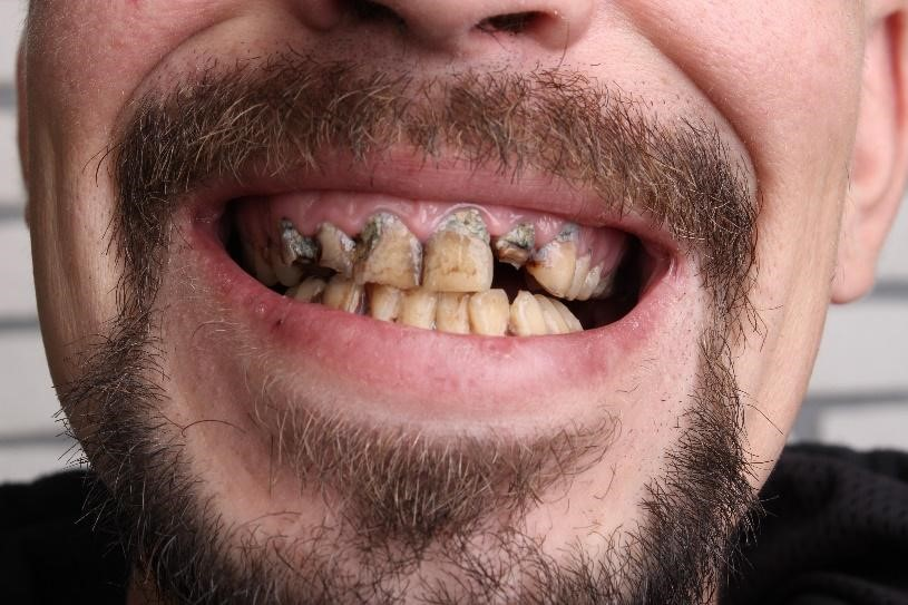 Meth Teeth Effect
